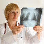 Туберкулез: заразен и опасен