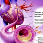 Как победить атеросклероз