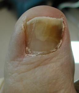Рецепт для лечения ногтевого грибка