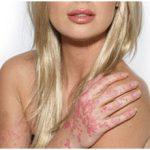 Увлажнение кожи при псориазе. Не гормональные крема и мази, опыт применения.